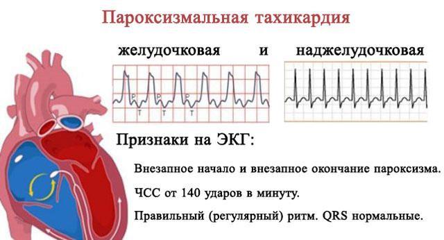 Наджелудочковая тахикардия на ЭКГ