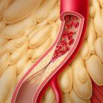 Профилактика тромбозов