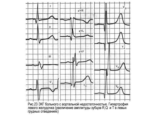 Аортальная регургитация на экг
