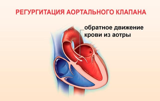 Регургитация аортального клапана