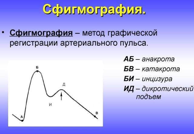 Сфигмография