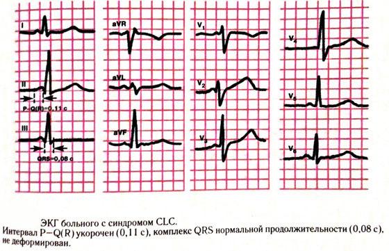 Синдром CLC на экг