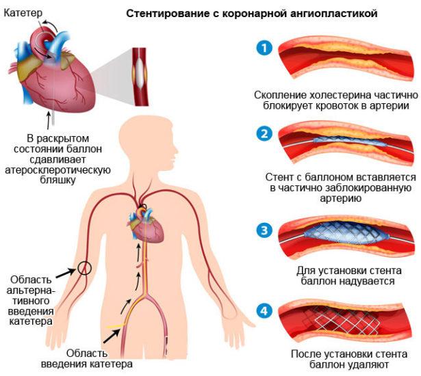 Стентирование с коронарной ангиопластикой