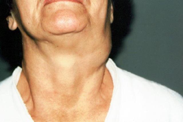 Что такое каротидная хемодектома