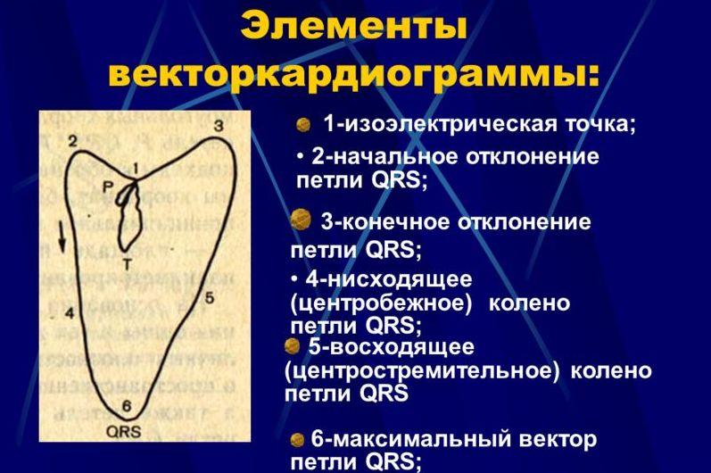 ВКГ петли и элементы