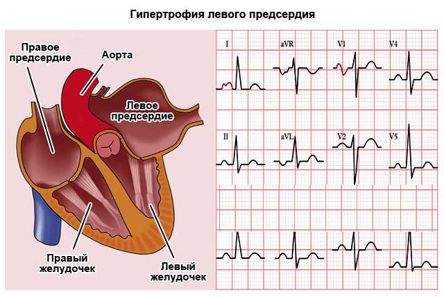 Гипертрофия левого предсердия особенности заболевания