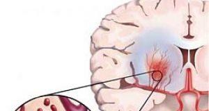 гемморагический инсульт