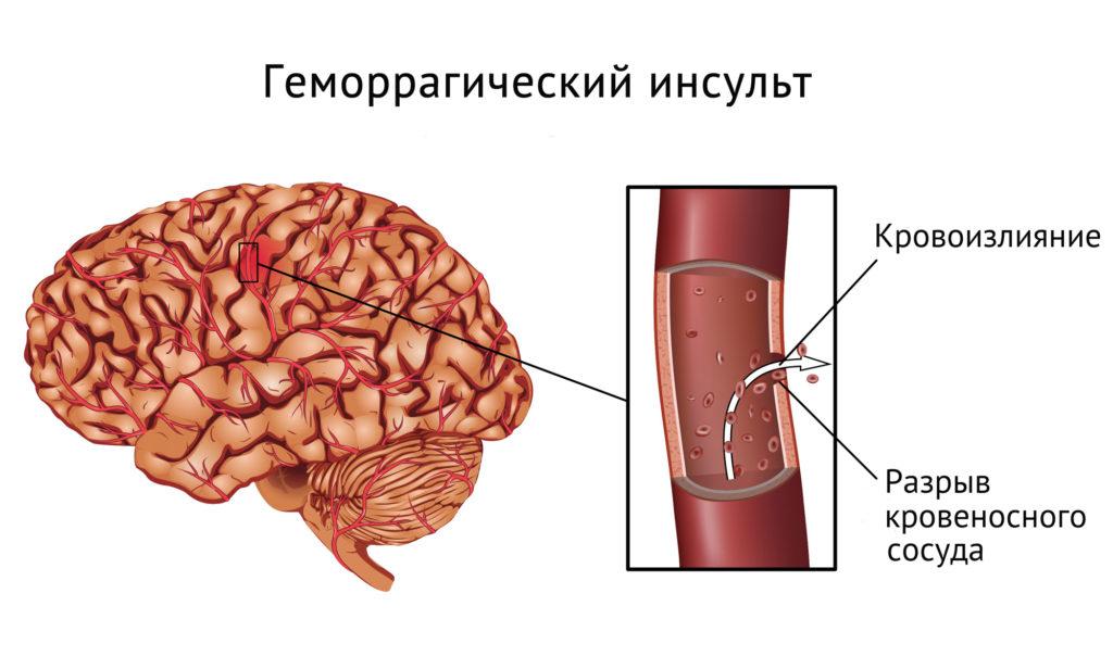 геморрагический инсульт