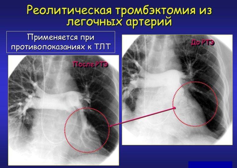 легочная тромбэктомия