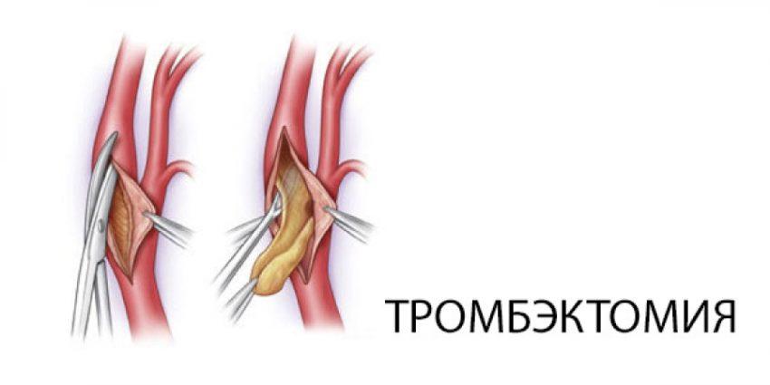 прямая тромбэктомия