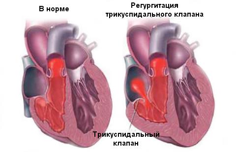 регургитация трискуспидального клапана