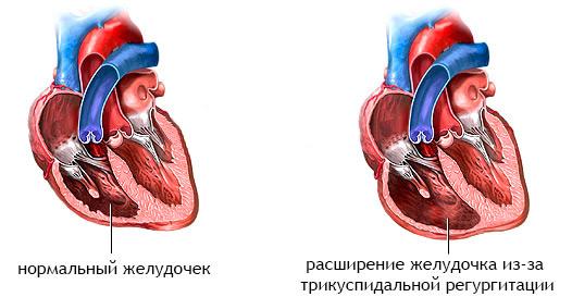 трискупидальная регургитация клапана