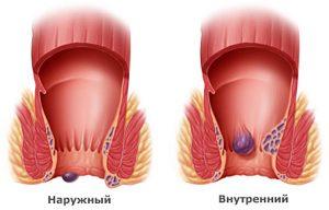 тромбоз гемороидального узла