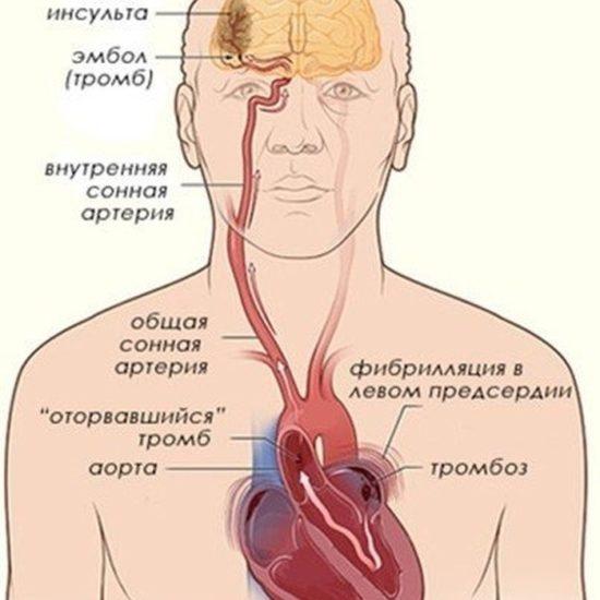 тромб в сердце