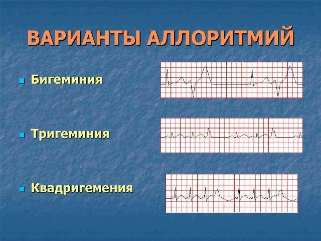 Аллоритмия