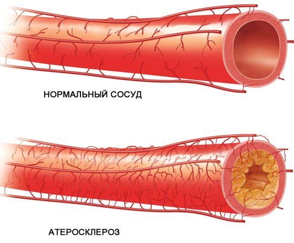 Атеросклероз - причина коронарной окклюзии
