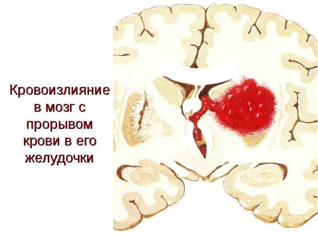 Внутрижелудочковое кровоизлияние