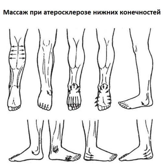 Массаж при атеросклерозе нижних конечностей