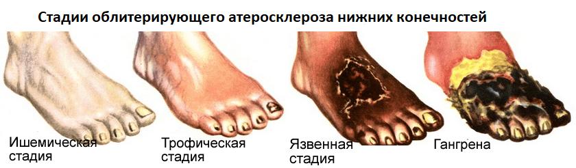 Стадии облитерирующего атеросклероза нижних конечностей