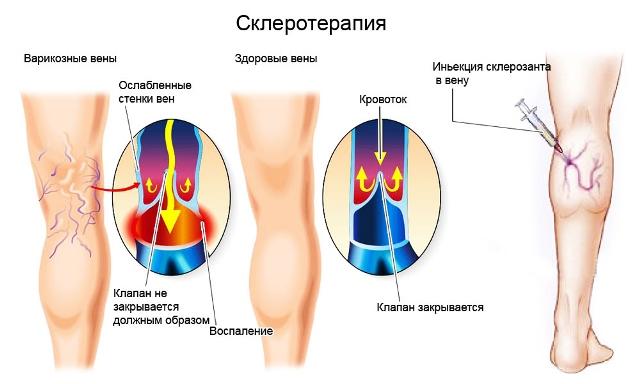 Склеротерапия при варикозе