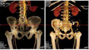 МСКТ артерий нижних конечностей обследование