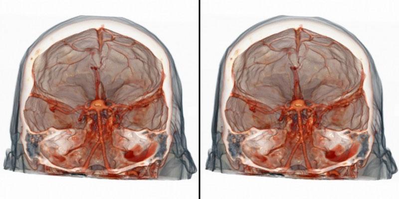 МСКТ головного мозга
