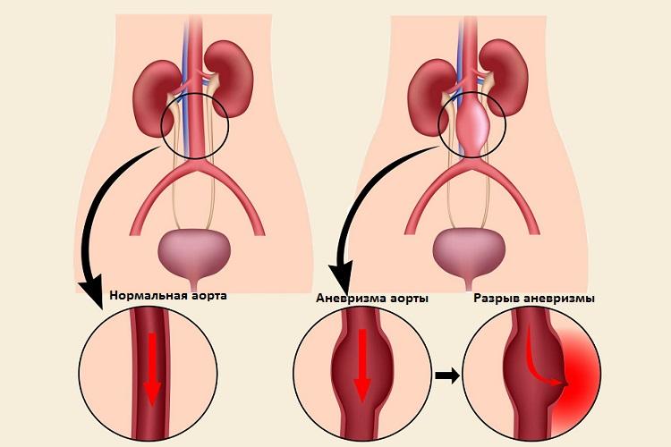 аневризма брюшной полости и норма аорты