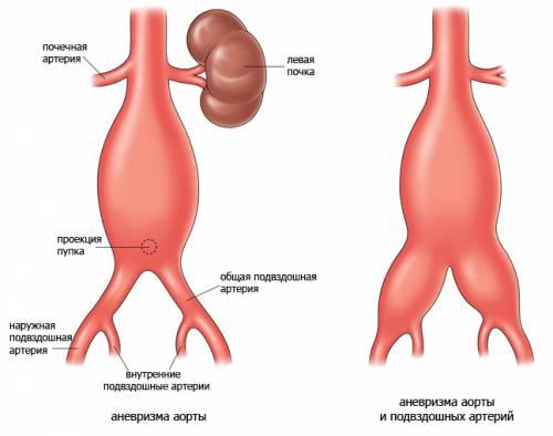 аневризма брюшной полости
