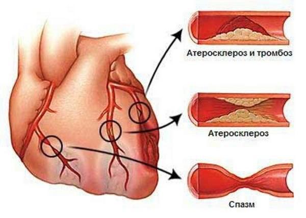 атеросклероз и тромбоз сосудов сердца