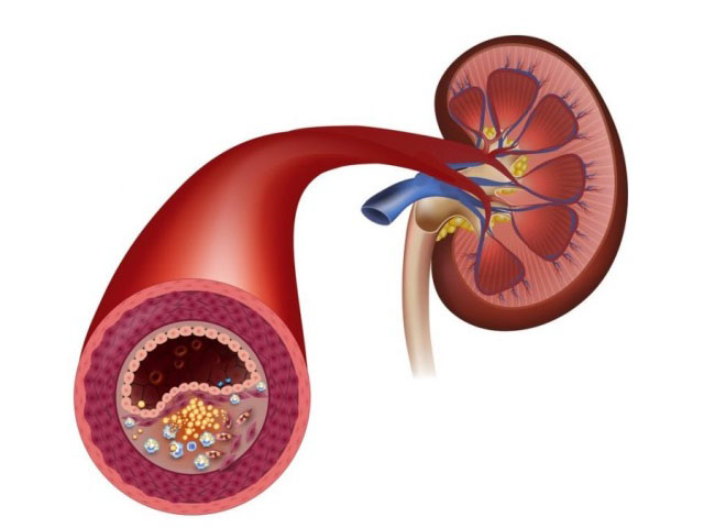 Атеросклероз почечных артерий