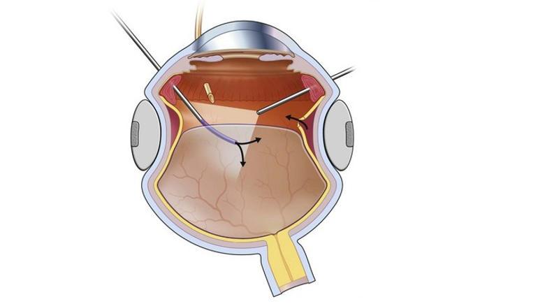 баллонирование сетчатки глаза