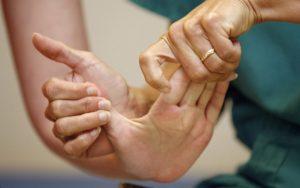 восстановления движения рук