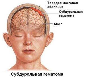 гематома на голове