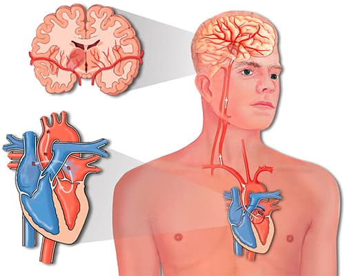 гемодинамический инсульт
