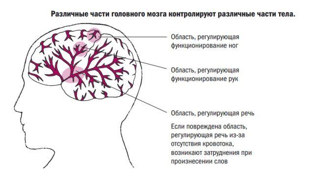 головной мозг и инсульт