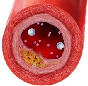 гомеопатия при атеросклерозе