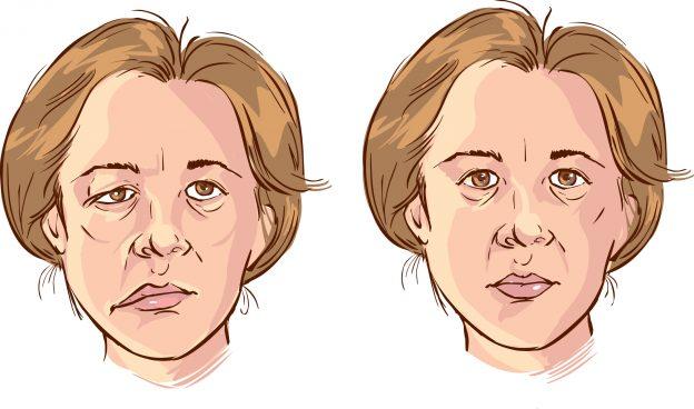 инсульт лицо