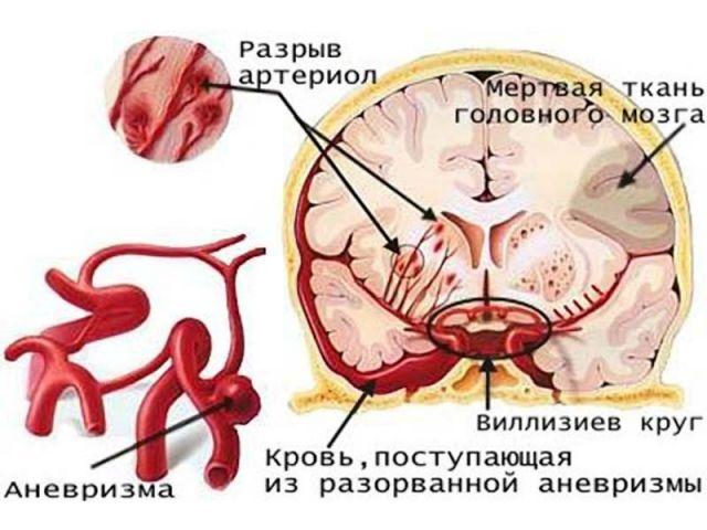 инсульт мозжечка симптомы