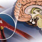 ишемический инсульт