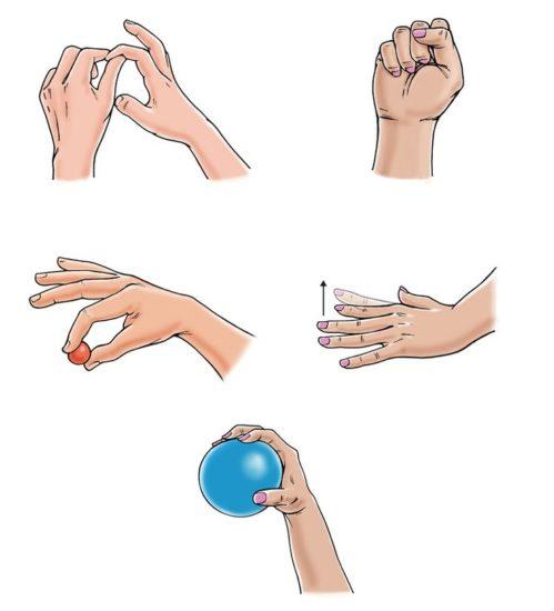 как разработать пальци и кисть после инсульта