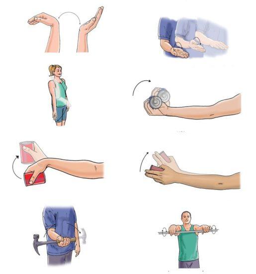 как разработать руку после инсульта