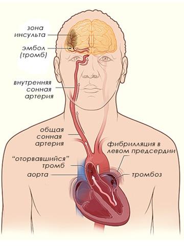 кардиоэмболический инсульт