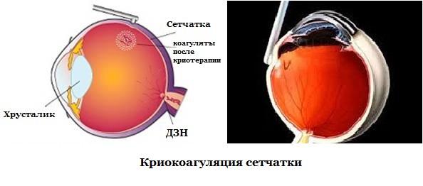 криокоагуляция сетчатки
