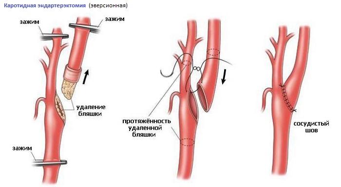 круговая резекция сонной артерии