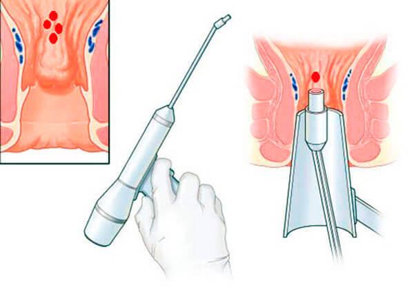 лазарное удаление геморроидальных узлов