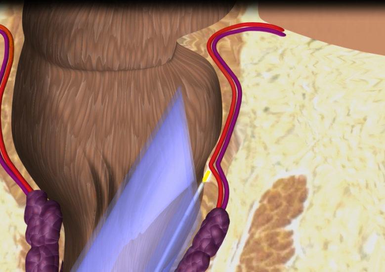лазерное лечение геморроидальных узлов
