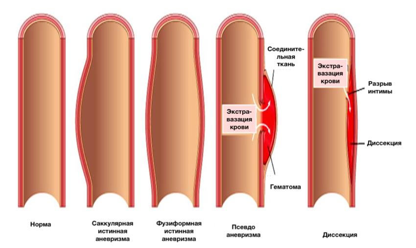 острый аортальный синдром