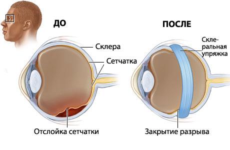 склерозирование сетчатки