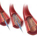 стентирование после инфаркта
