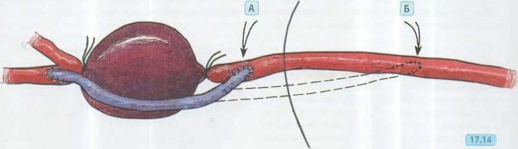 удаление аневризмы подколенной артерии